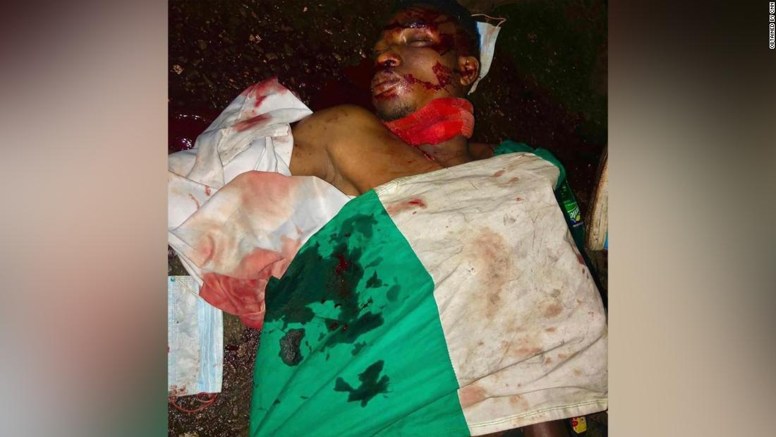 They pointed their guns at us and started shooting #LEKKI MASSACRE- by CNN