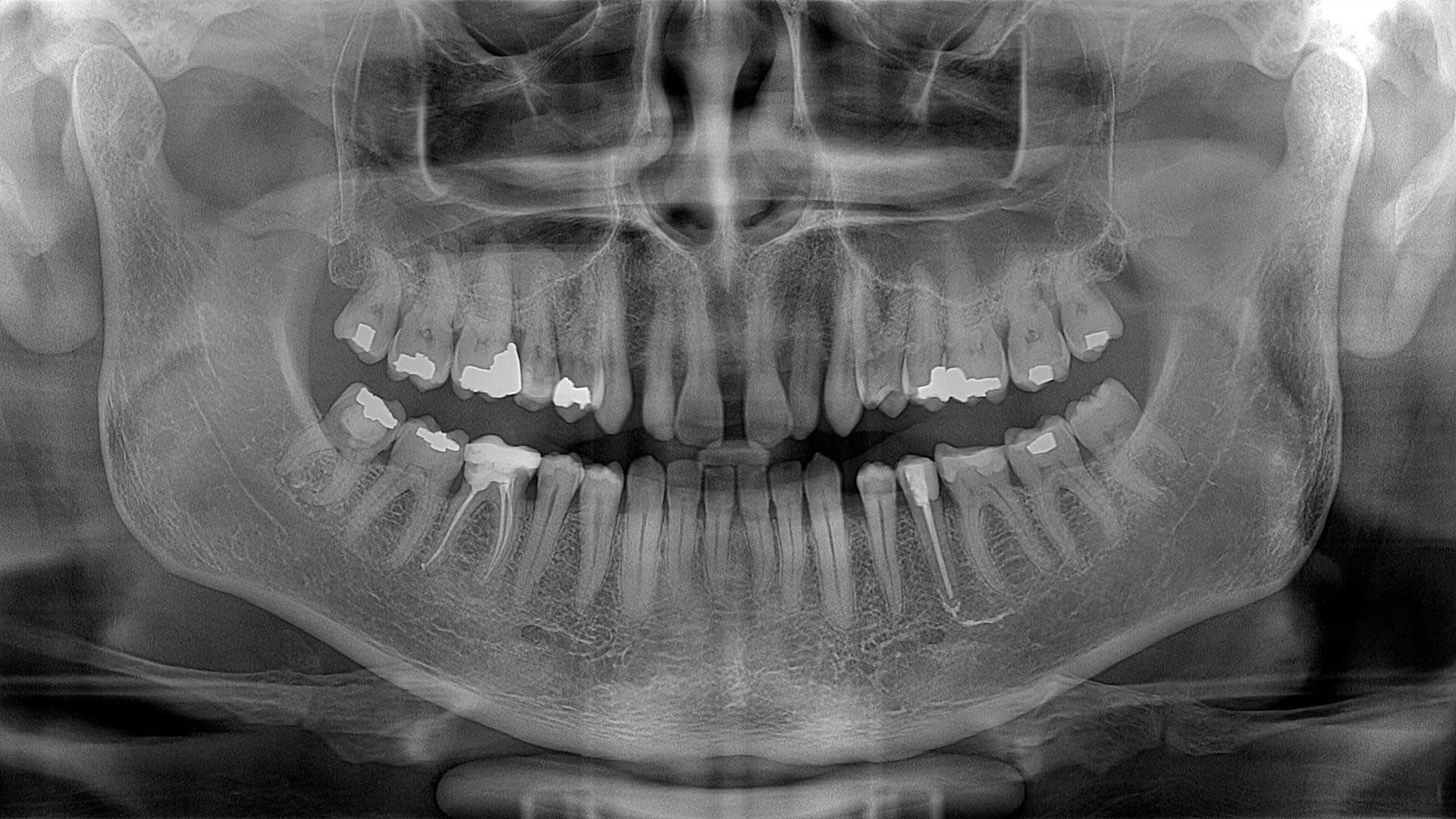 Dental Panoramic Image