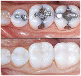 Amalgam Composite