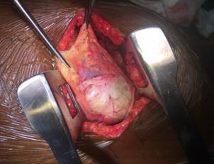 Fig 3: Intra Op: Excision through Thoracotomy