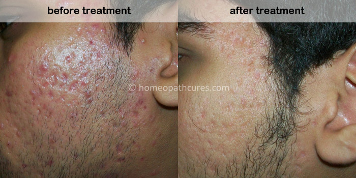 homeopathy treatment for acne