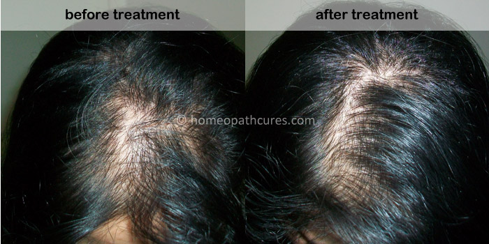 alopecia homeopathy treatment