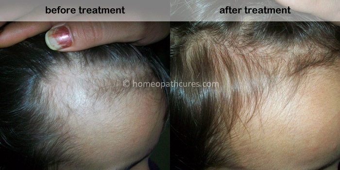 homeopathy treatment for alopecia