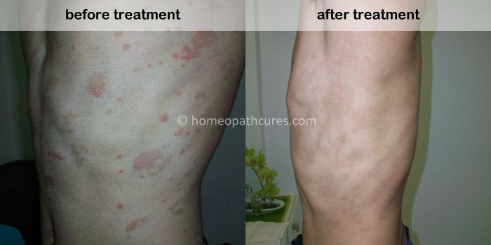 homeopathy treatment for psoriasis