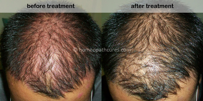 homeopathy treatment for scalp