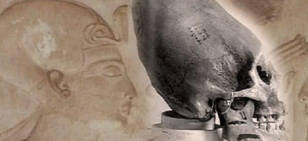 teschio allungato antico Egitto