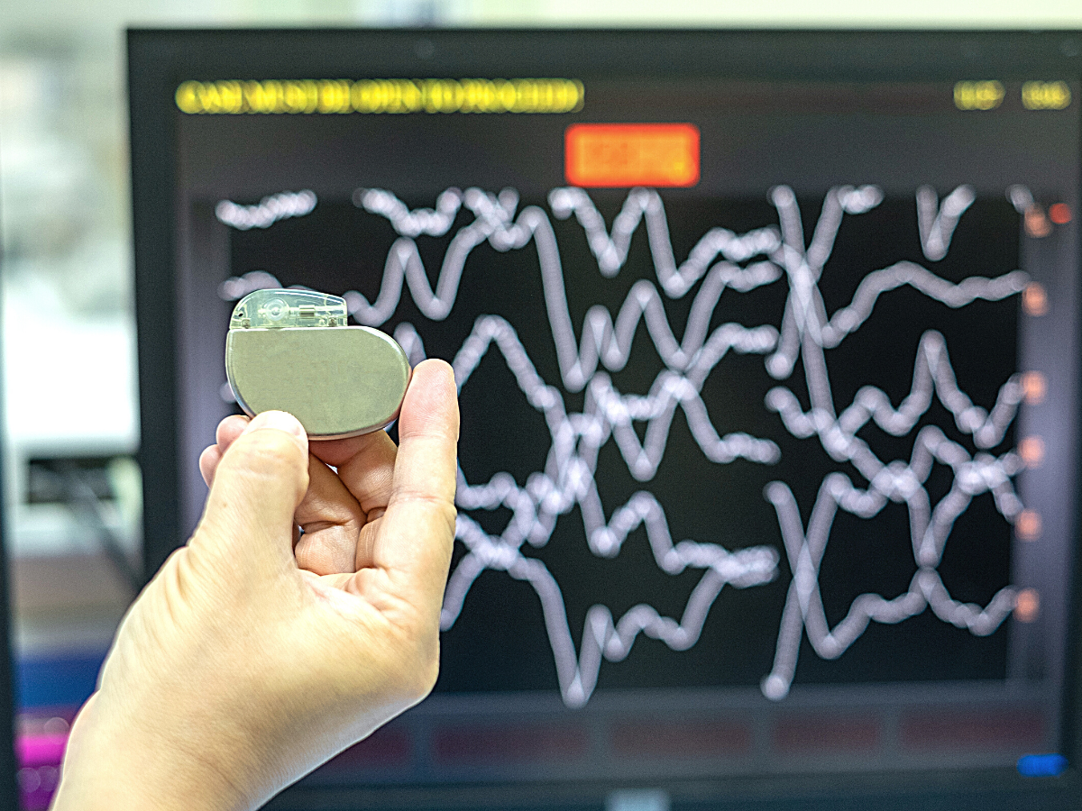 Cyber Attacks Target Pacemakers