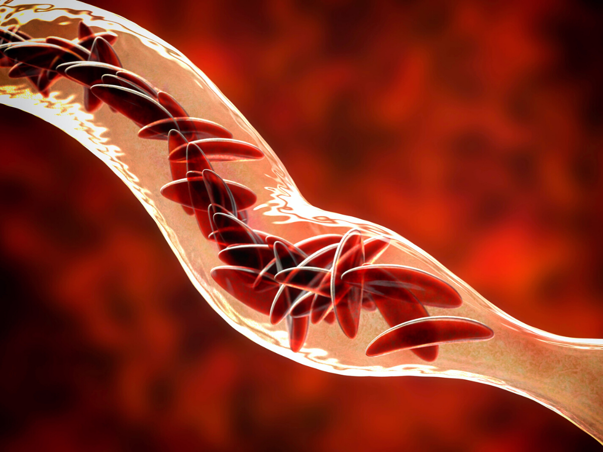 First New Sickle Cell Treatment in 20 Years