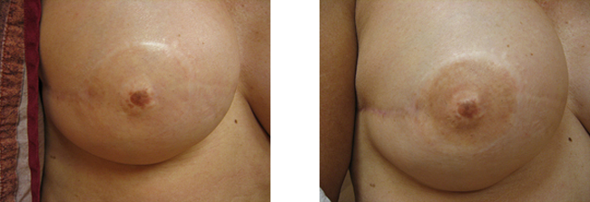 breast restoration with permanent makeup