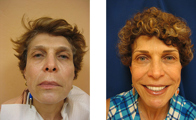 full face permanent makeup