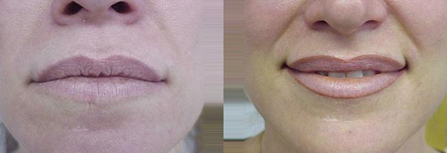 lip permanent makeup