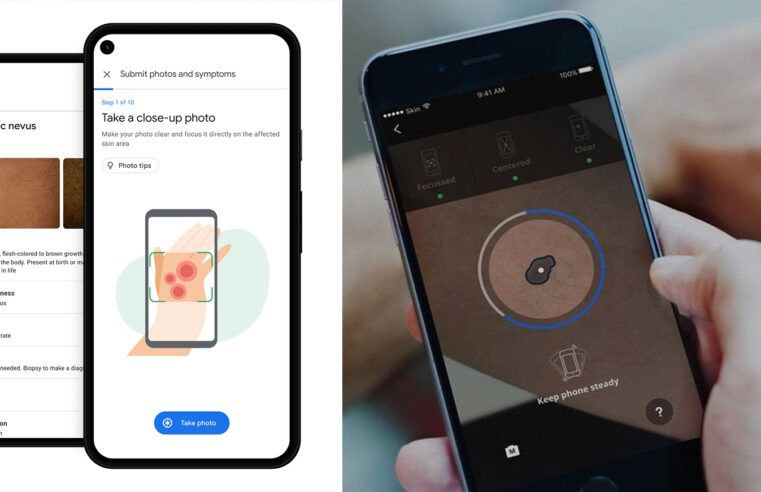 Detect over 288 skin conditions with Google's new AI tool