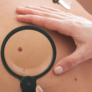 Mole-Check-Clinic-at-Exeter-Medical-in-Devon-940x320