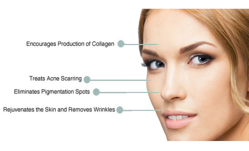 Bella Collagen Induction Therapy at Brighter Smiles Med Spa and Laser Center of Eugene Oregon