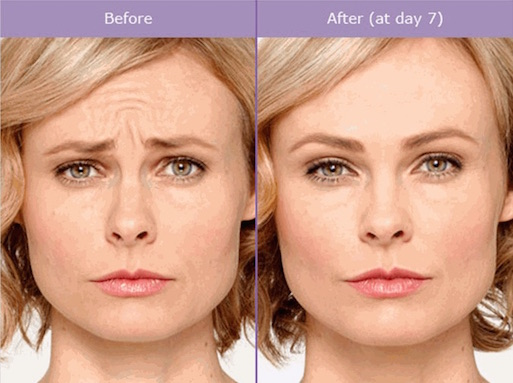 Botox® Injections, Dysport® Prescription Injections, Wrinkle and Frown Line Treatments, Eugene Oregon