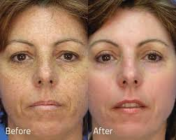 Lentigo Treatments before and afters by Brighter Smiles Med Spa and Laser Center, Eugene Oregon