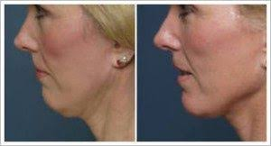 SKIN TIGHTENING WITH SkinTyte™ TREATMENT IN ABOUT AN HOUR