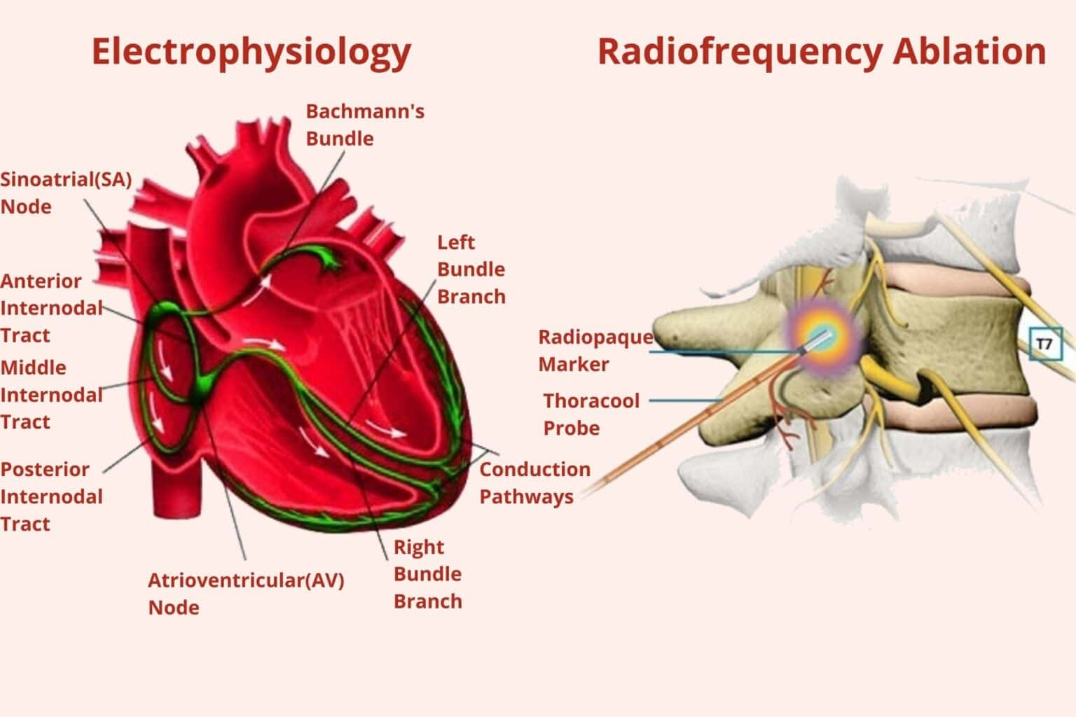 ct angiography cost