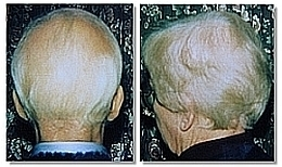Alopecia Natural Treatments