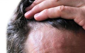 Acute scalp dermatitis