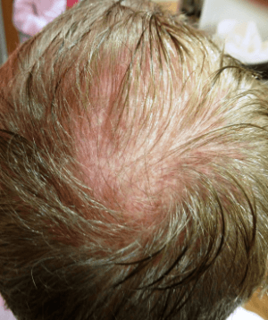 natural stem cell hair recovery