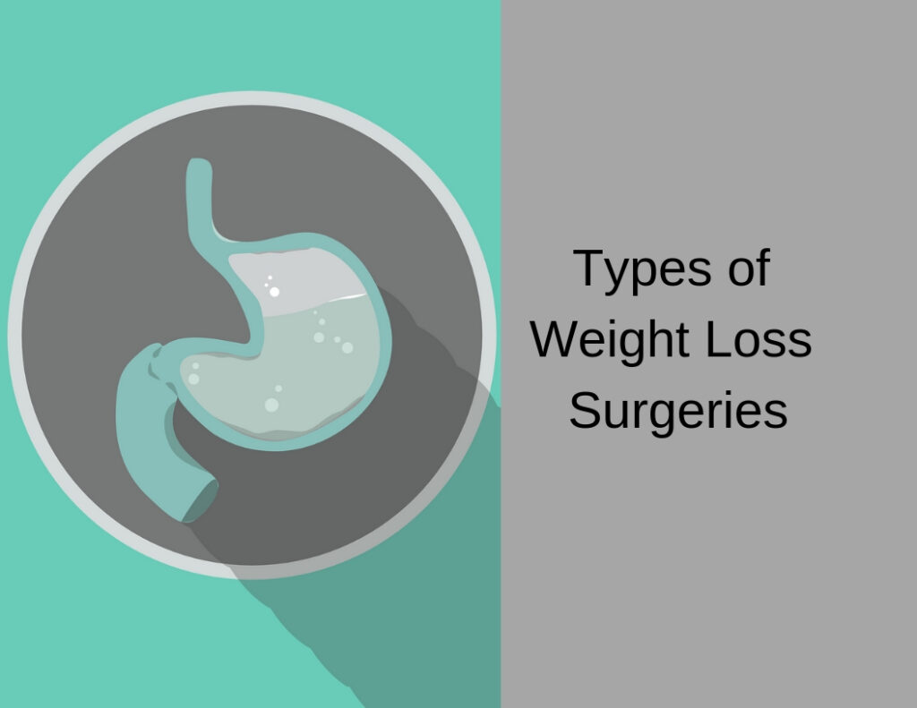 Types of Weight Loss Surgeries