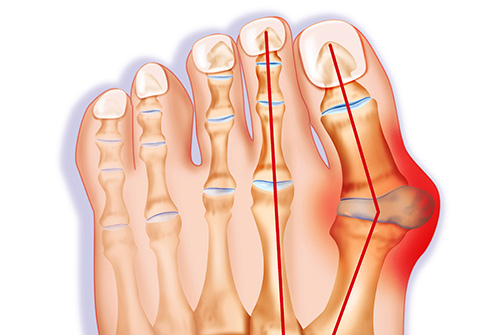 Bunions: Best Home Remedies