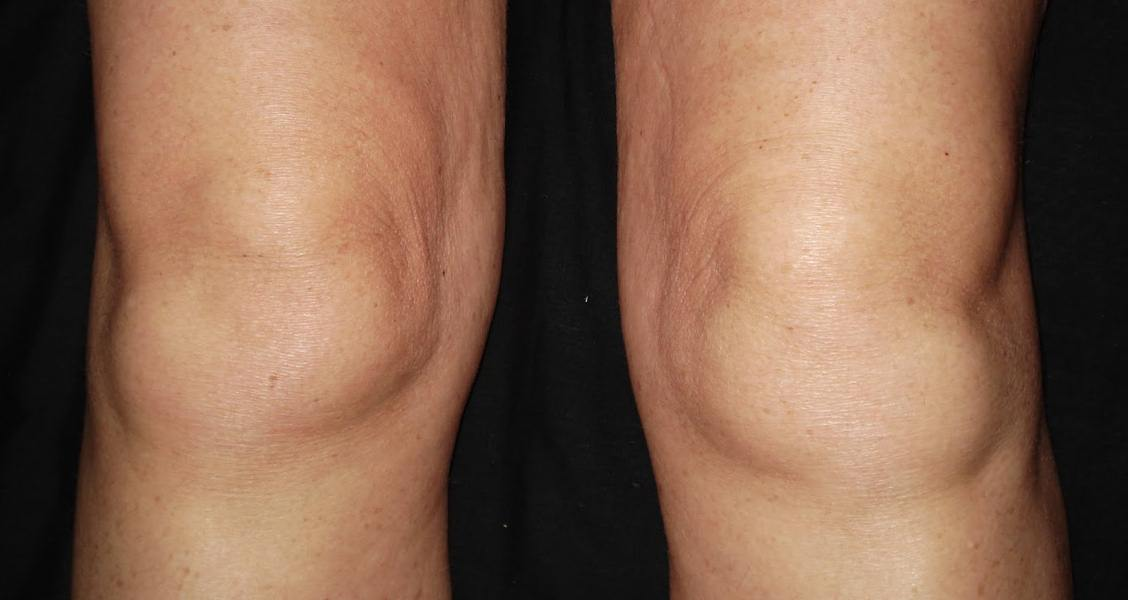 8 Home Remedies to Reduce Knee Swelling Quickly