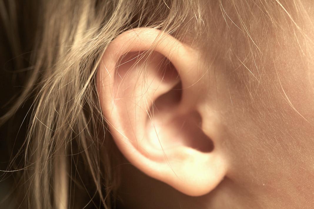 Corregir orejas prominentes es una operación rápida.