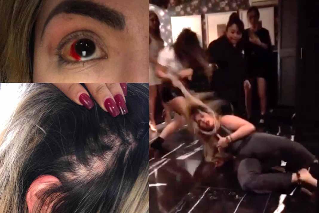 La agresión a la actriz ocurrió en un baño