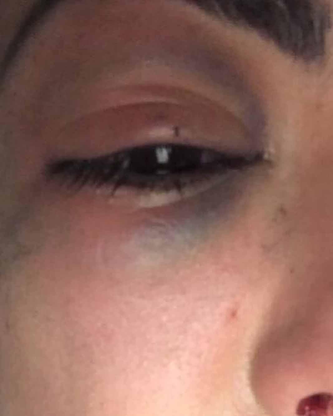 Así quedó con un ojo morado por la golpiza
