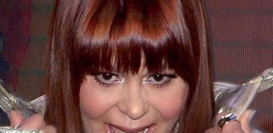 Este ángulo deja ver lo inflado de los labios de Alejandra