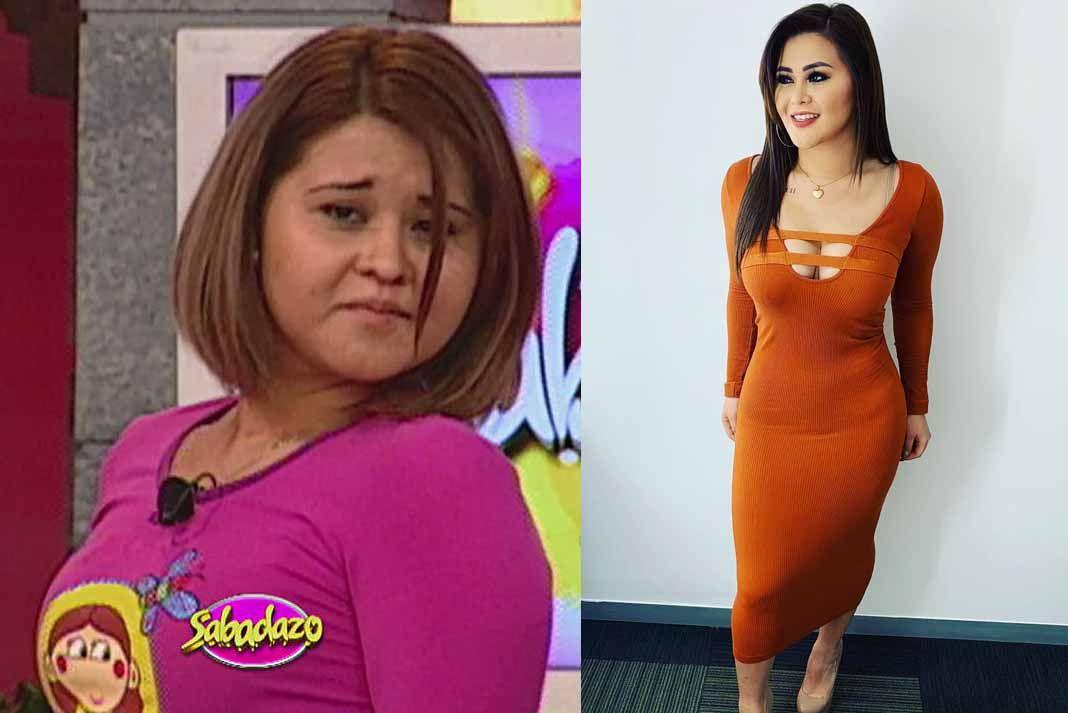 El antes y después de Araceli Ordaz, mejor conocida como Gomita