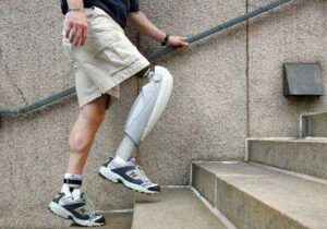 Bionic Body Parts