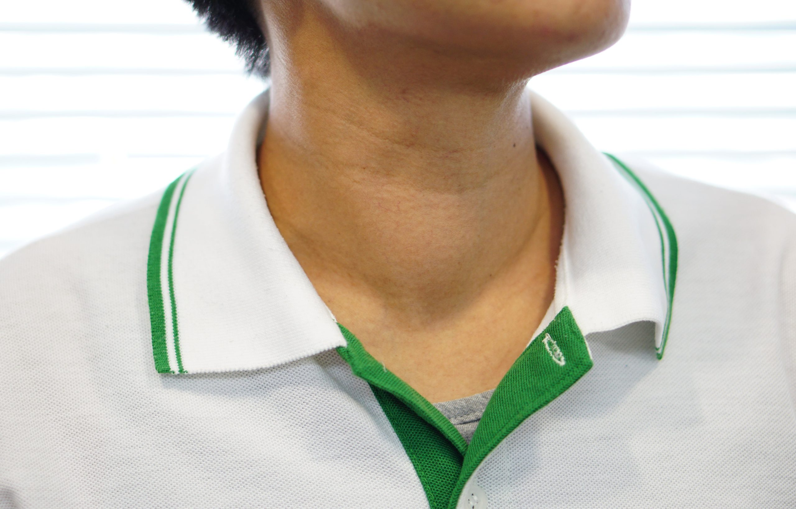 Thyroid symptoms - swelling of the neck