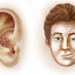 Herpes zoster oticus https://en.wikipedia.org/wiki/Ramsay_Hunt_syndrome_type_2#/media/File:Ramsey_Hunt_Syndrome.png