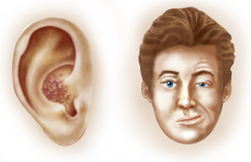 Herpes zoster oticus, facial palsy and vesicles   https://en.wikipedia.org/wiki/Ramsay_Hunt_syndrome_type_2#/media/File:Ramsey_Hunt_Syndrome.png