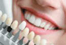 Cosmetic dentistry: Is it right for you?