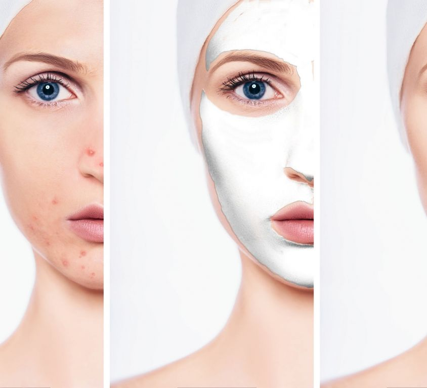 Skin Peel