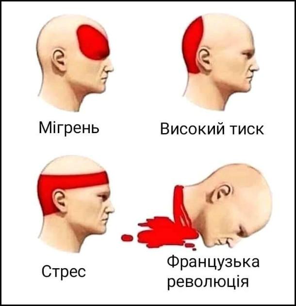 Мем Типи головного болю: мігрень, високий тиск, стрес, Французька Революція