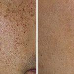 pigmented_lesions_wk_book