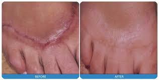 Scar Reduction Laser Treatment