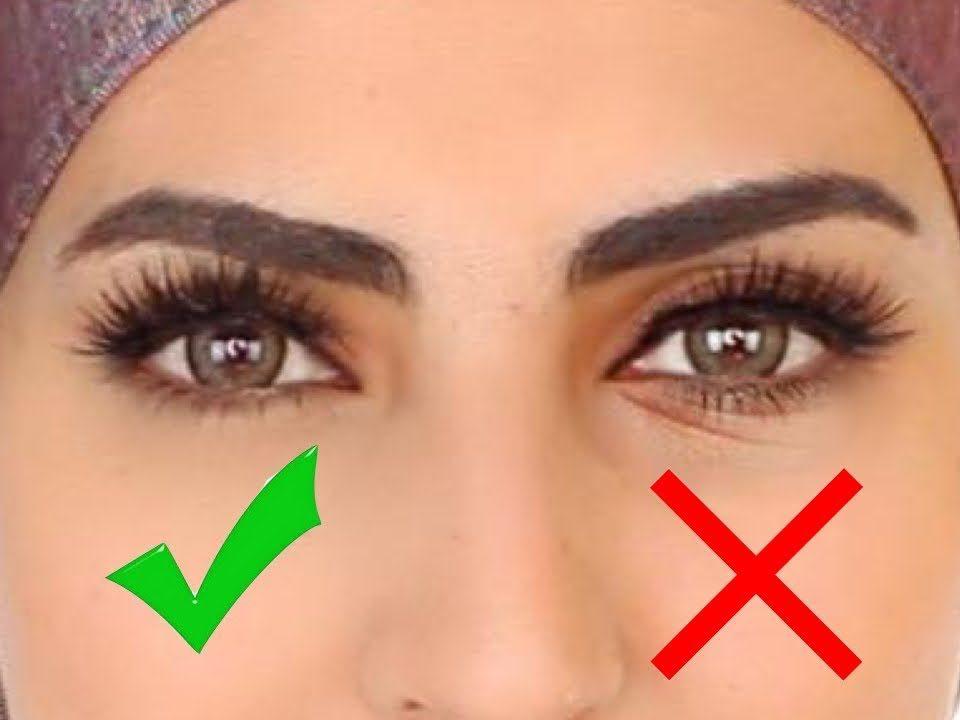 علاج خطوط تحت العين