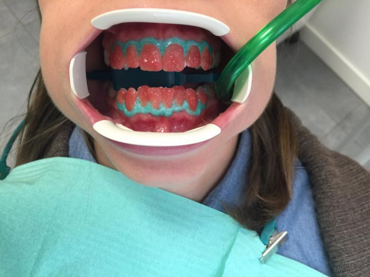 Dentista aperto villafranca