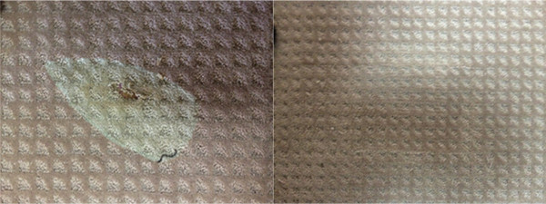 Kellyville NSW Carpet Repair of a Iron Burn in the Carpet