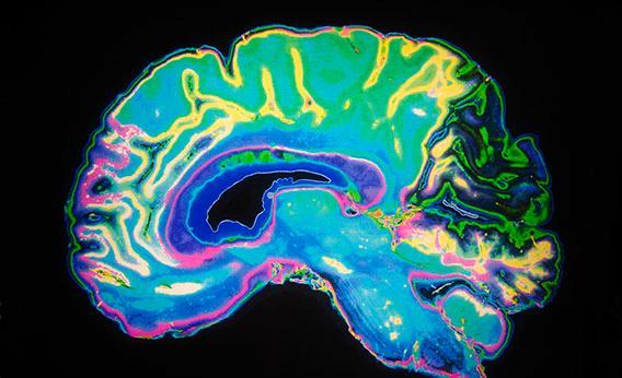 BrainScanDopamine.jpg.CROP.rectangle3-large