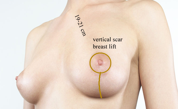 breast lift methods