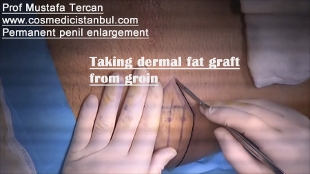 permanent penil enlargement surgery_1