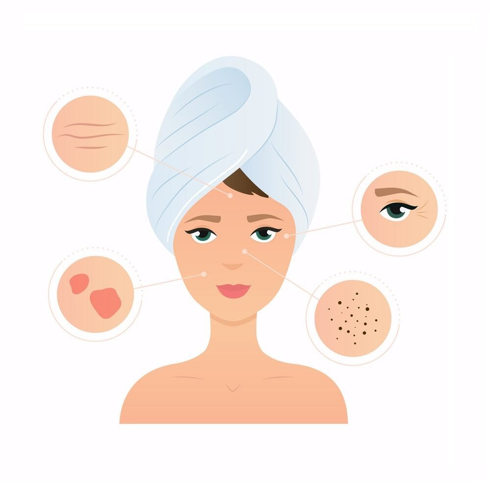 Skin problems solution, home remedies. Skincare and dermatology concept. Flat design modern vector illustration concept.