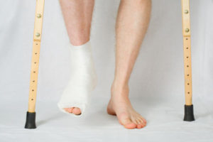 ankle_fracture